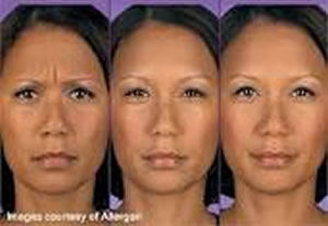 Before After Botox