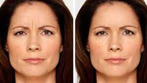 Before After Botox IV
