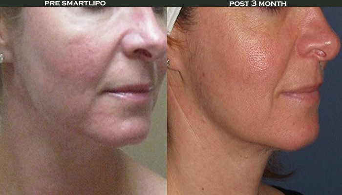 skin rejuvenation before and after photos