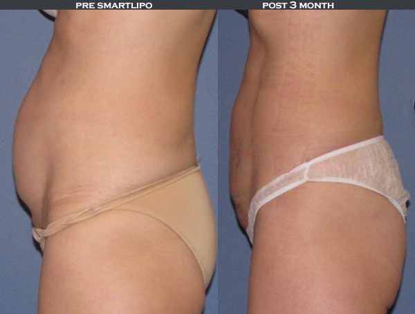 SmartLipo - cosmetic body sculpting