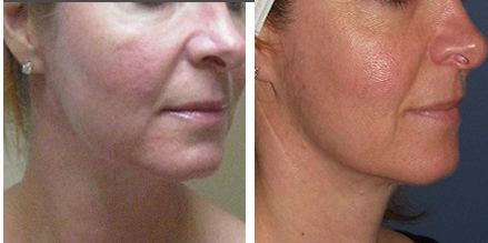 MicroLaserPeel™ Treatment NJ