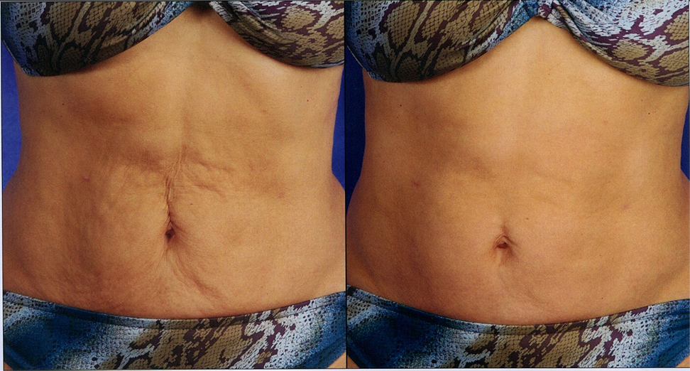 skin tightening treatment before and after