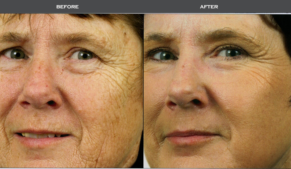 injectable filler procedure madison nj