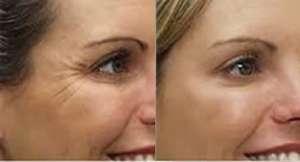 botox anti-aging procedure