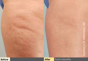 TriActive™ Cellulite Treatment