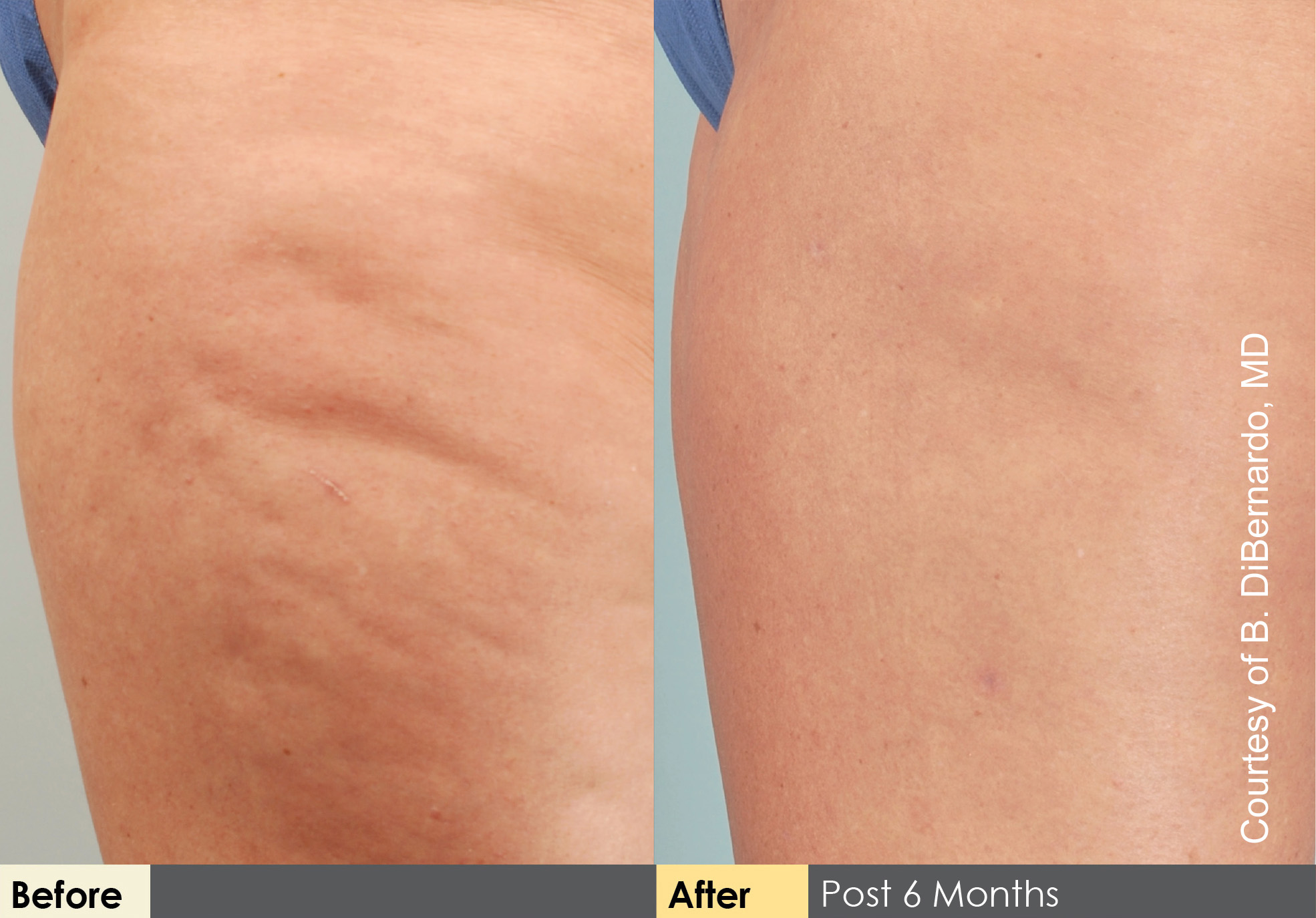 Cellulaze Treatment in New Jersey