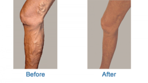 before and after varicose leg vein