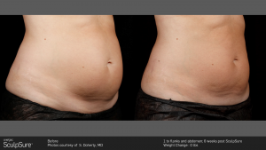 SculpSure fat reduction procedure