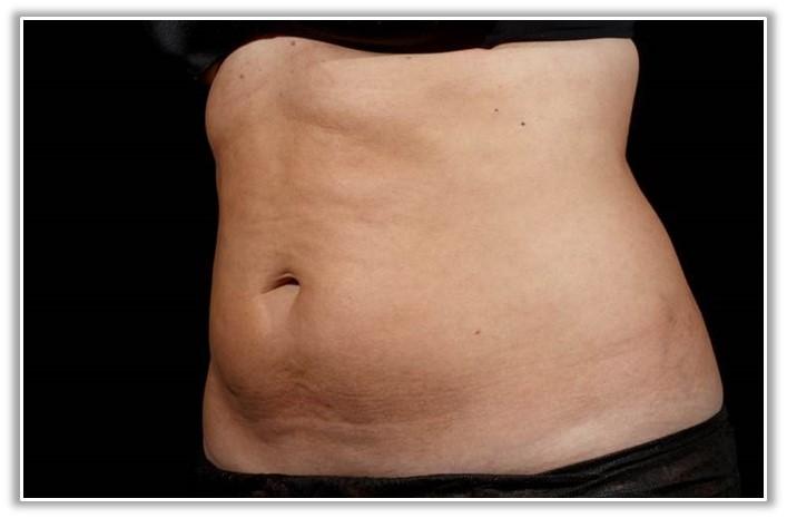 SculpSure fat lipolysis