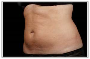 SculpSure fat lipolysis