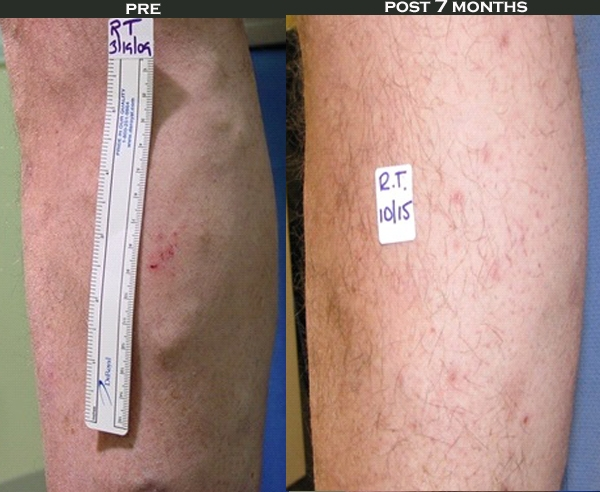 pre and post vein treatment
