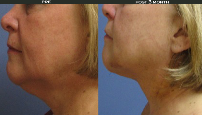women's face before and after SmartLipo