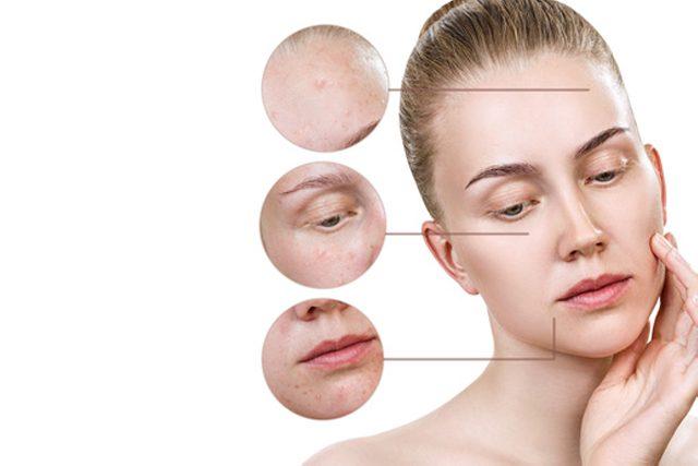 women's face skin darkening