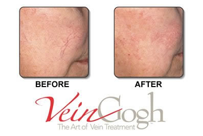 VeinGogh treatment before and after