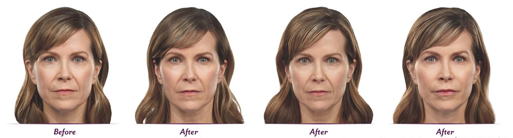 photos before and after Juvederm