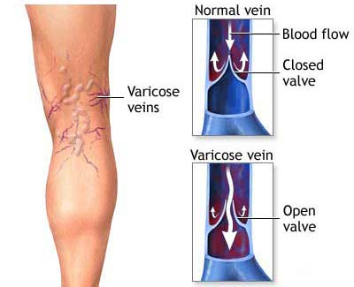 varicose vein graphic with healthy blood flow and diseased version