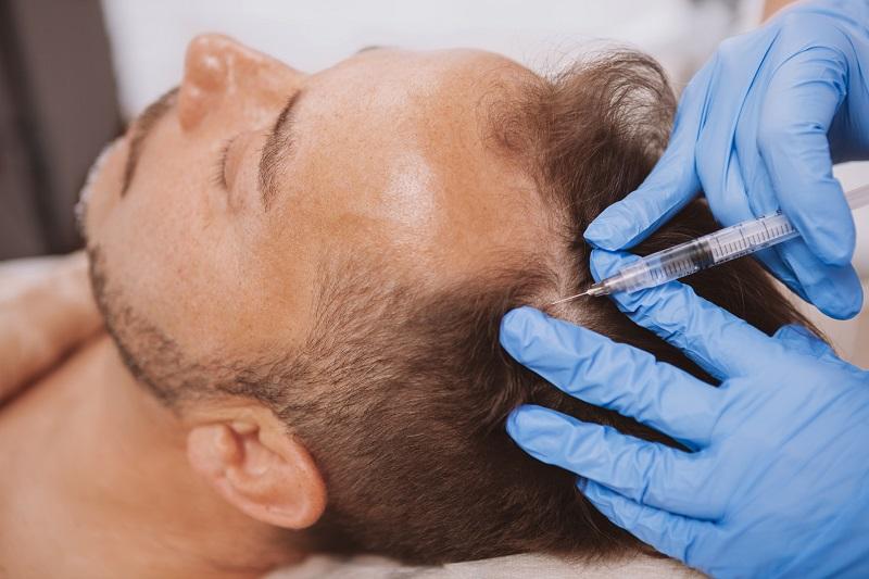 prp hair restoration for man